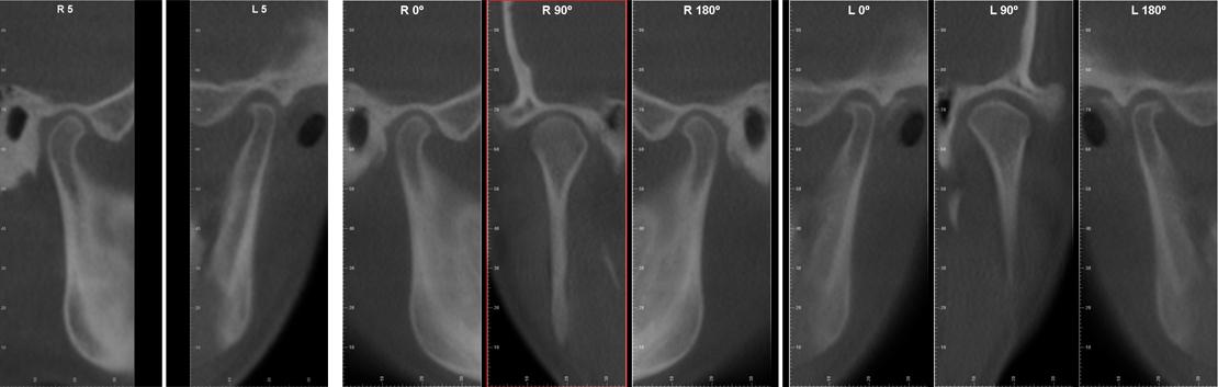 Esame radiografico 3d delle articolazioni temporo mandibolari.