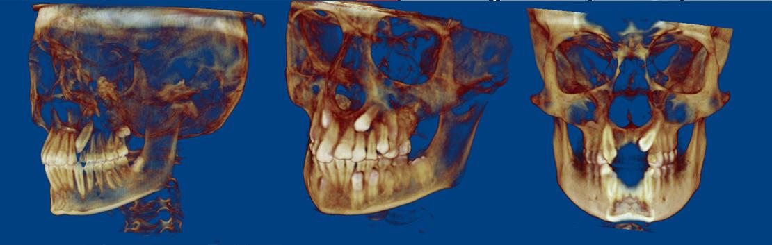 Esame radiografico 3d per la valutazione nei casi di canini inclusi.