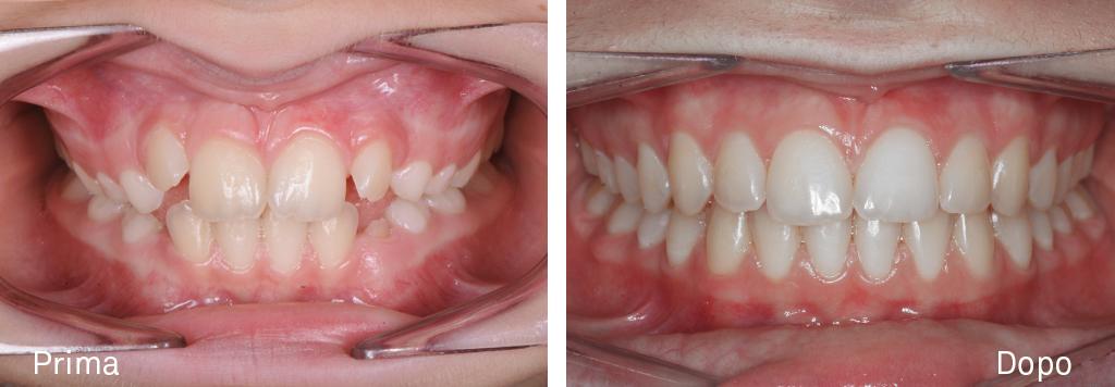 Caso di affollamento con morso aperto - Trattamento ortodontico intercettivo - seguito da una fase di apparecchio fisso