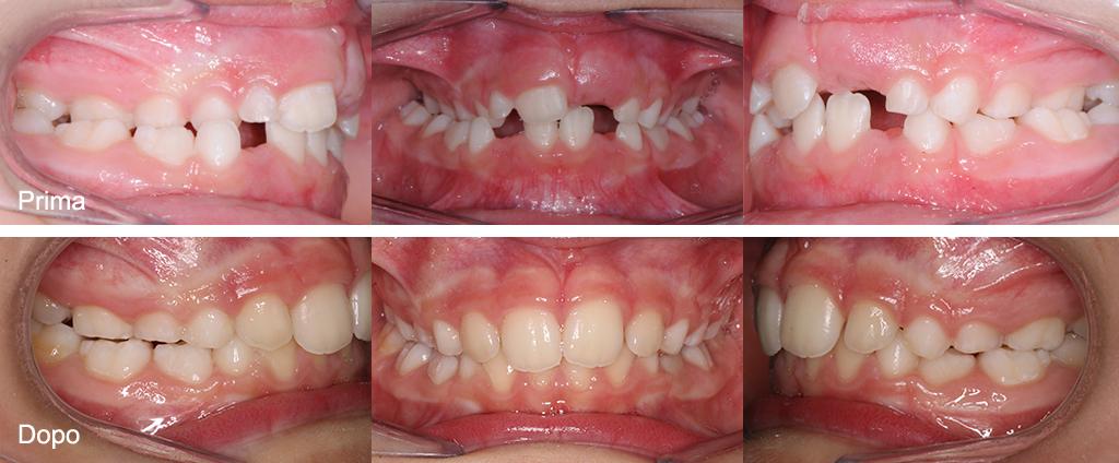 Trattamento intercettivo in dentatura decidua