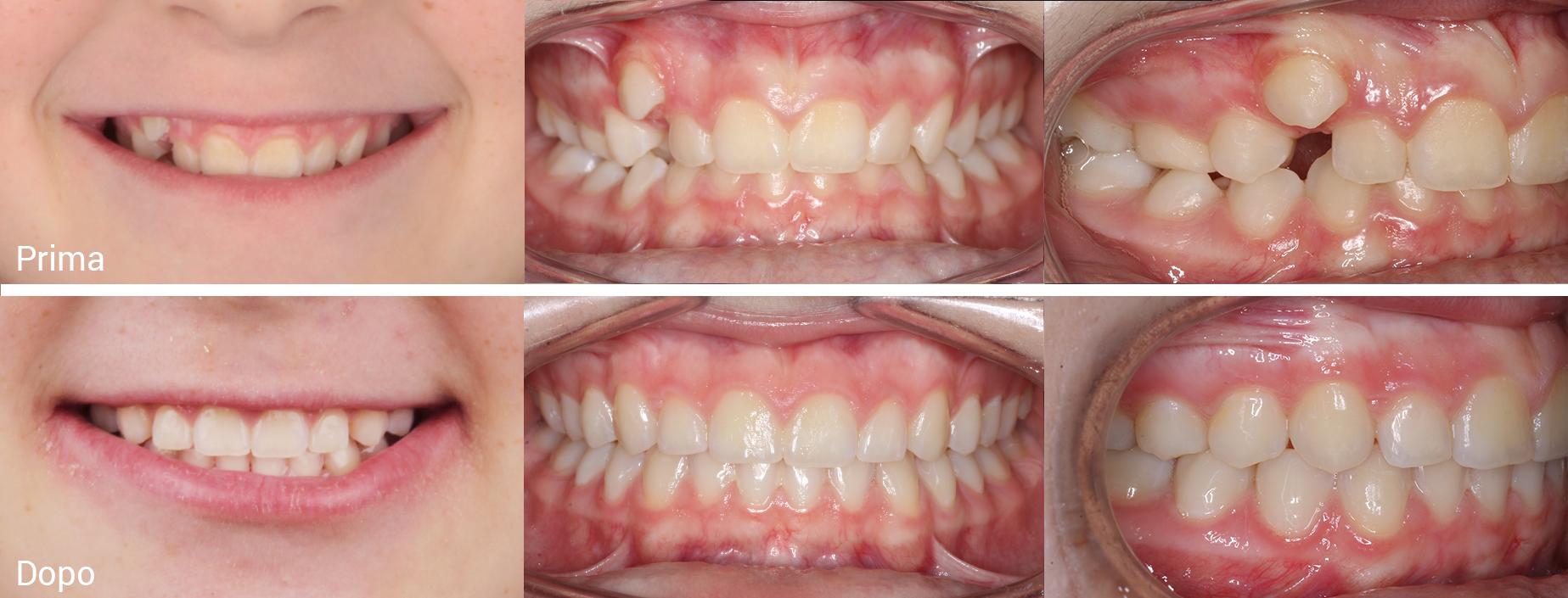 Trattamento ortodontico tradizionale