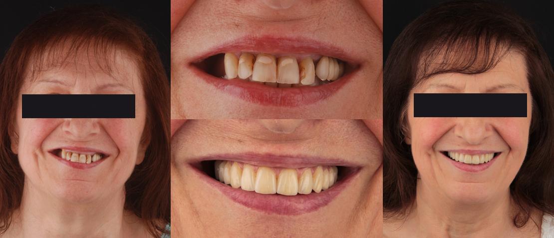 Ripristino multidisciplinare del sorriso