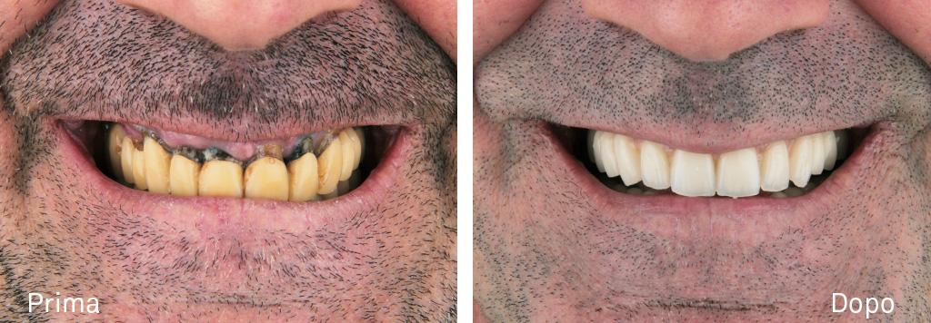 Terapia implanto protesica