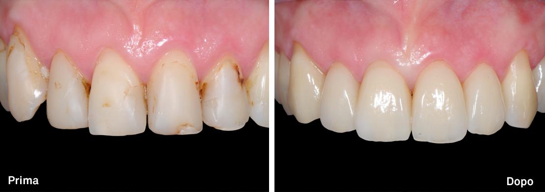 Riabilitazione con faccette in porcellana - denti frontali superiori