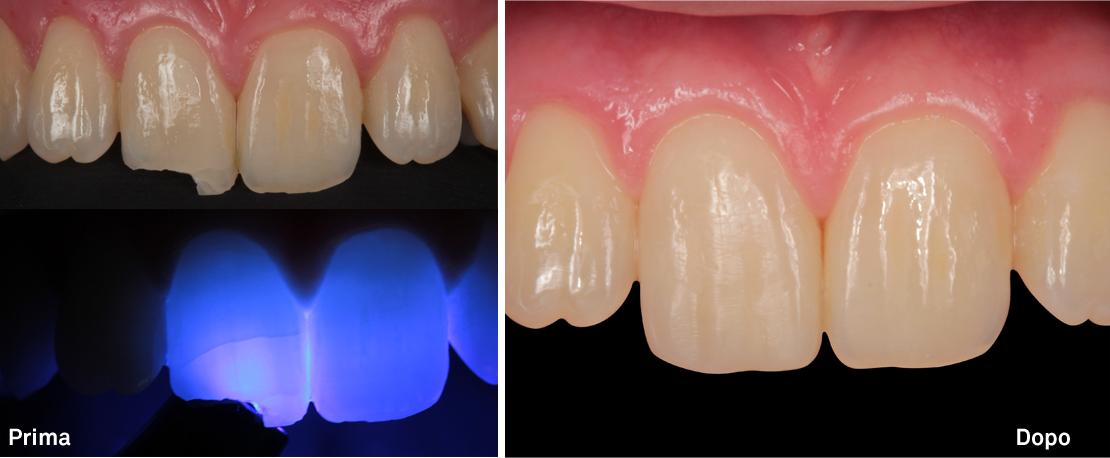 Ricostruzione estetica su dente fratturato