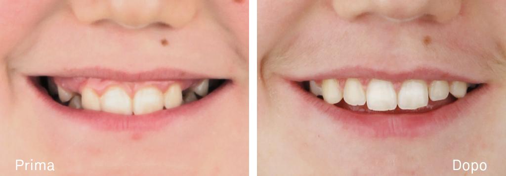 Trattamento ortodontico di un caso caratterizzato da una seconda classe molare e canina monolaterale